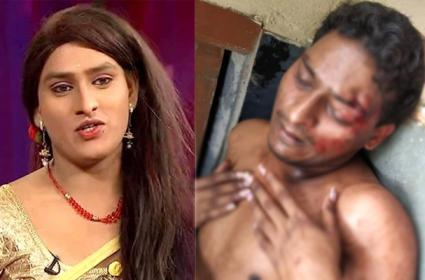 jabardasth Artist Vinod Attacked in kachiguda - Sakshi