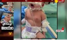 New Born Baby Covid Infect Recovers 10 Days Ventilator