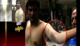 Musheerabad police beat NRI || NRI complaints to HRC - Sakshi