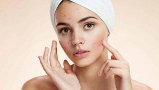 Reasons And Prevention For Acne - Sakshi