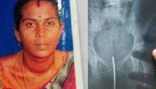 Needle Gets Left in Womans Stomach In Tamil Nadu - Sakshi