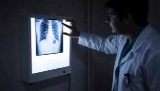 Doctor Found Pen Cap In Boy Lungs At Kolkata - Sakshi