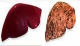 World Hepatitis Day: All You Need To Know About Symptoms, Types - Sakshi