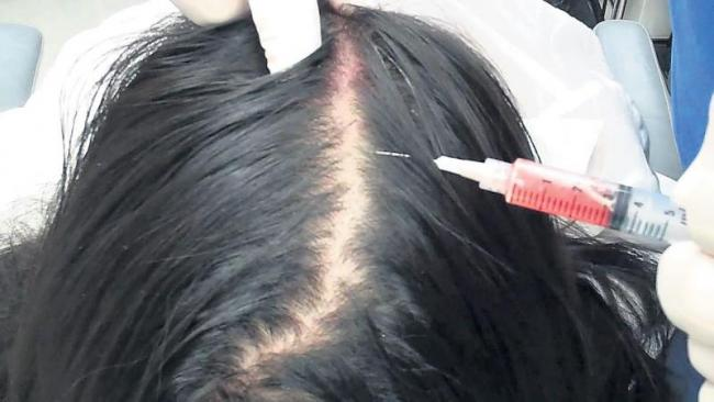 Injection to protect hair in chemotherapy