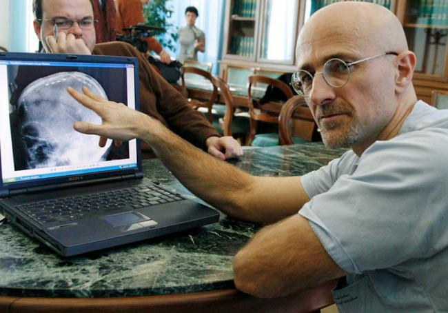 first human head transplant a success, controversial scientist claims - Sakshi - Sakshi - Sakshi