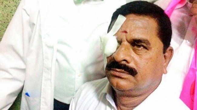 Swamy Goud faking injury to eye? - Sakshi