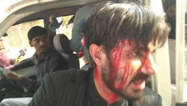 Violence At Aligarh Muslim University For Karnataka Elections - Sakshi