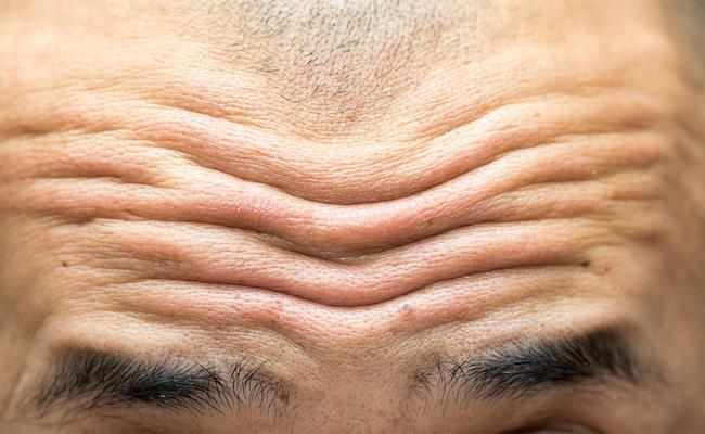 Forehead Wrinkles Sign For Cardiovascular Disease Says Studies - Sakshi