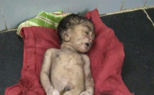Girl Child Death In Anantapur - Sakshi
