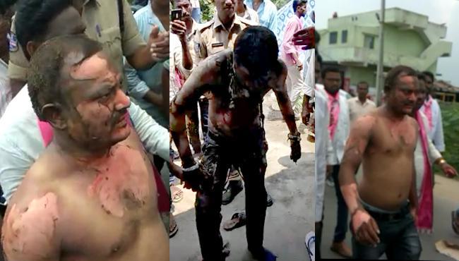 Nallala Odelu Activists Suicide Attempt Over Seats Allocation - Sakshi