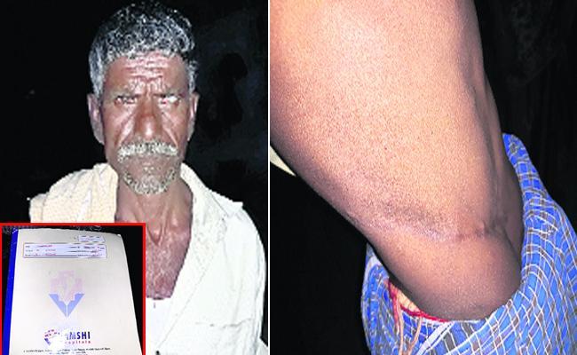 Hospital Doctors Stolen Kidney From Patient In Hyderabad - Sakshi