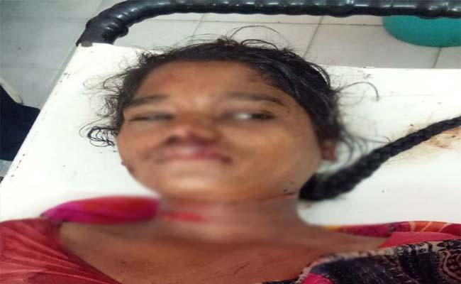 Thief Attack On Women Mahabubabad - Sakshi