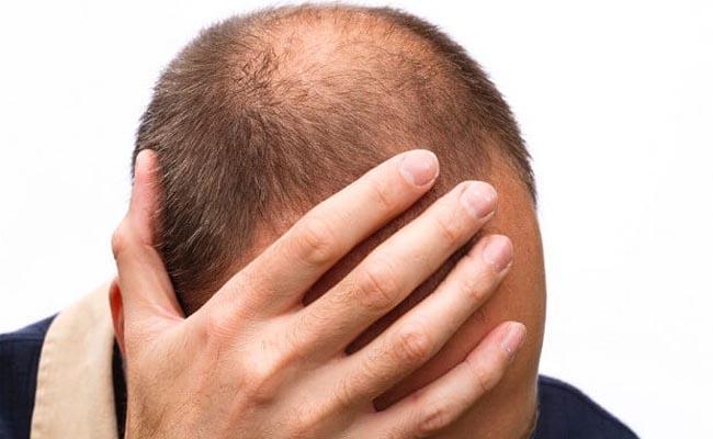 The Main Reason Behind Bald Head - Sakshi