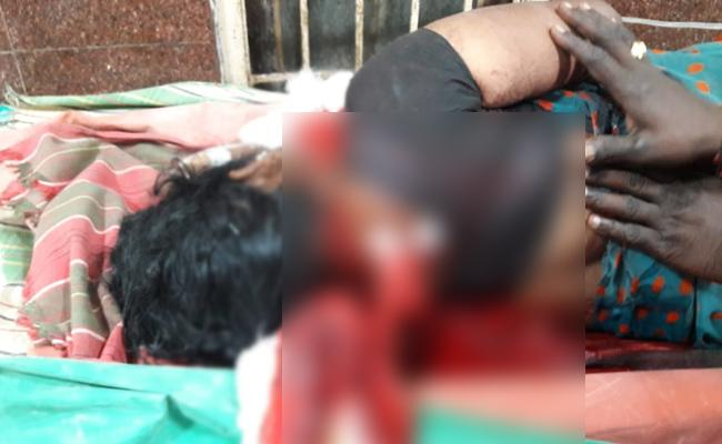 Husband Knife Attack On Wife Vizianagaram - Sakshi