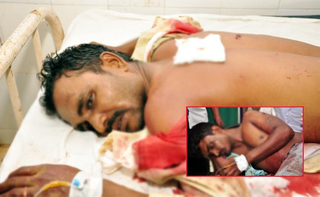 Knife Attack On Brothers in PSR Nellore - Sakshi