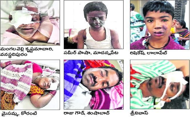 People Injured While Celebrate Deepawali Festival - Sakshi