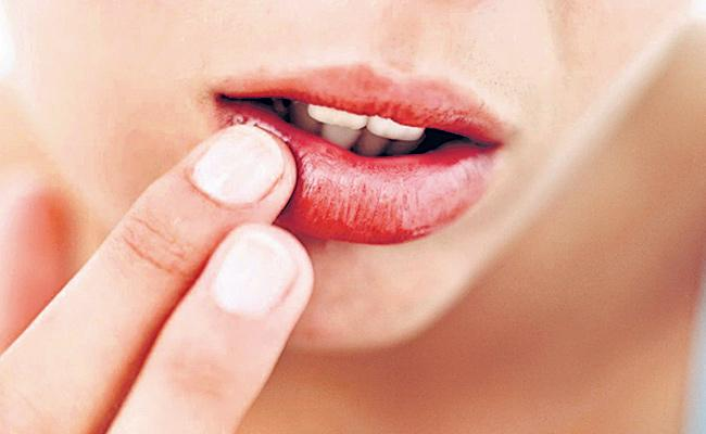 Beauty tips:Winter lips are drying - Sakshi