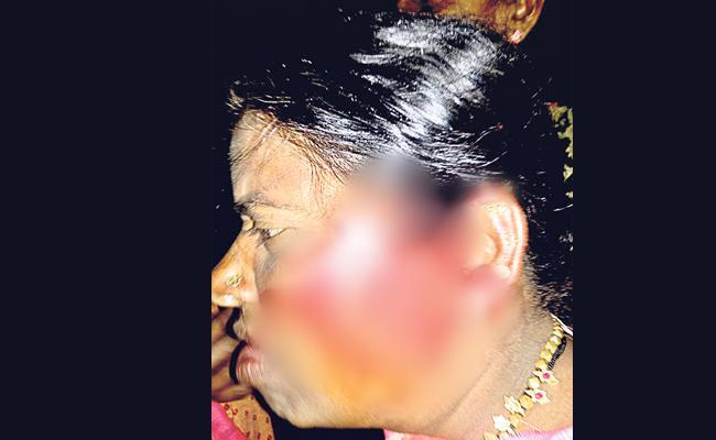 Congress Leaders Attack OnTRS Women Leader - Sakshi