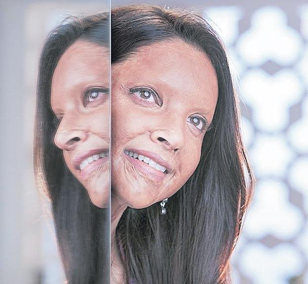 Deepika Padukone as acid attack survivor Laxmi Agarwal in Chhapaak - Sakshi