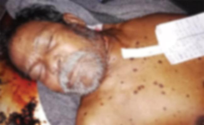Old Man Suicicde in Srikakulam - Sakshi