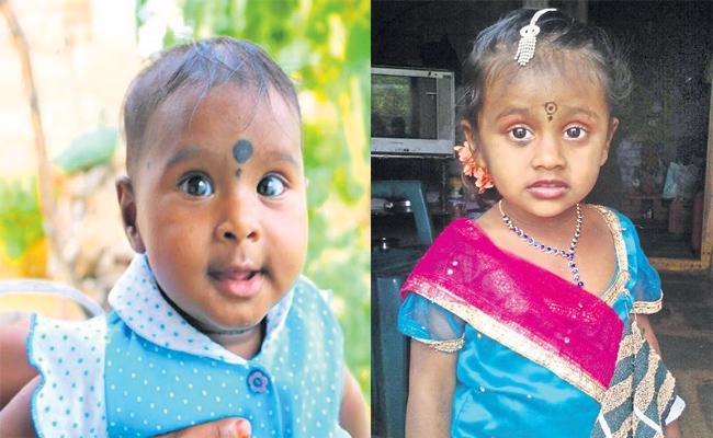 Children Died With Snake Bite in Medak - Sakshi