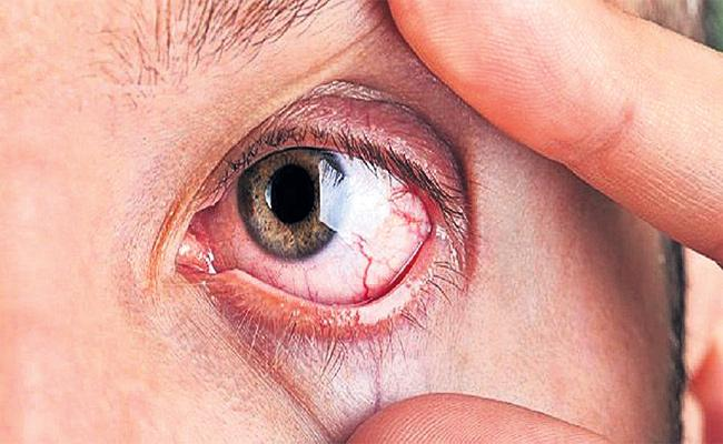 Dry Eye Syndrome Disease With Air Conditioners - Sakshi