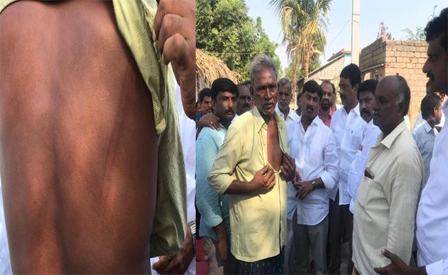 TDP Leaders Attacked YSRCP Activist on the Grounds That YSRCP Participated in The Campaign - Sakshi