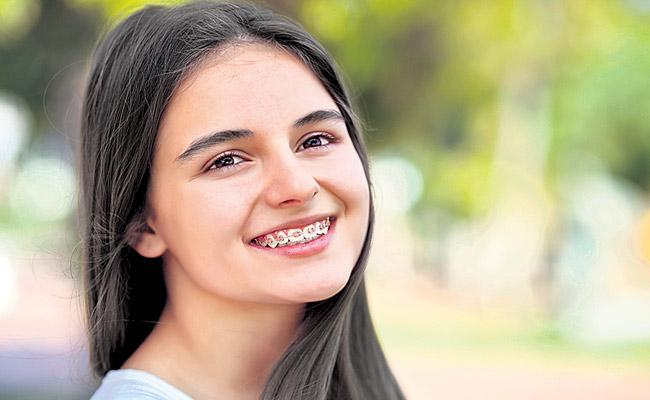 Clips are very important for the first two weeks in the treatment of orthodontic - Sakshi