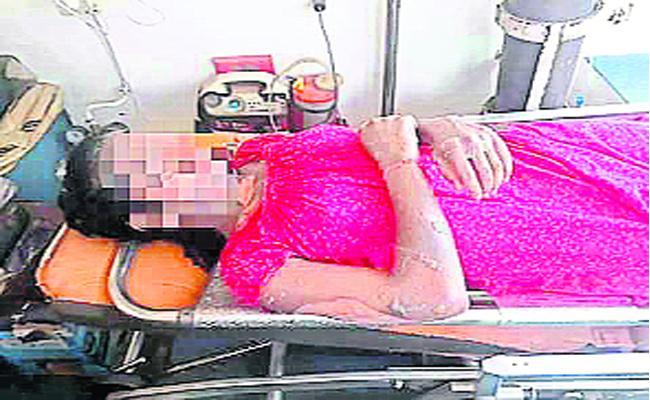 Young Woman Set On Fire Over Love Issue - Sakshi