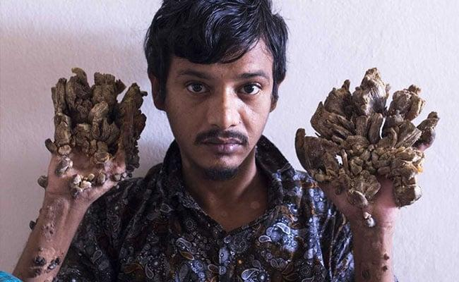 Bangladesh Tree Man Wants Hands Amputated To Relieve Pain - Sakshi
