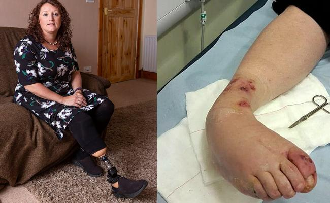 Woman Amputated Her Leg Due To Perfume Bottle Fell On Leg - Sakshi
