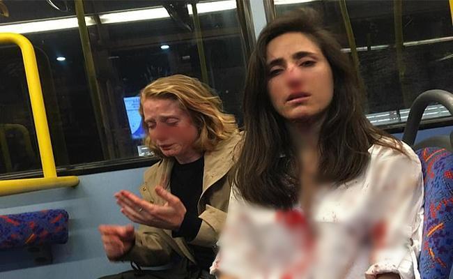 Two Women Beaten Up For Not Giving Kiss In London - Sakshi