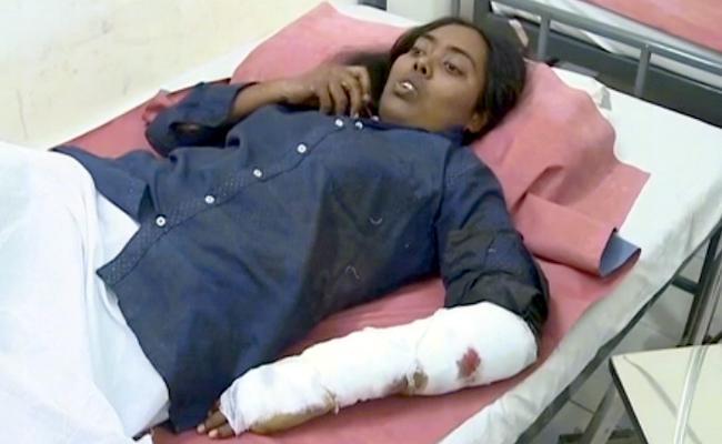 Woman Attacked By Bear In Tirumala - Sakshi
