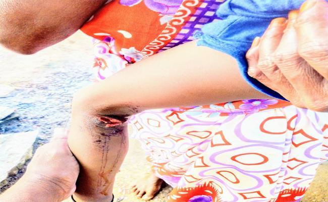 dogs Bytes  Increases In Karimnagar - Sakshi