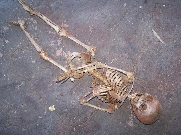 Person Skeleton Find out In Warangal  - Sakshi