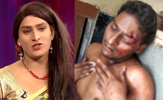 jabardasth Artist Vinod Attacked in kachiguda - Sakshi