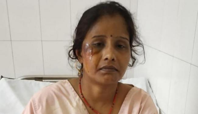 Agra Bus Accident Survivor Kept Asking About Husband And Daughter - Sakshi