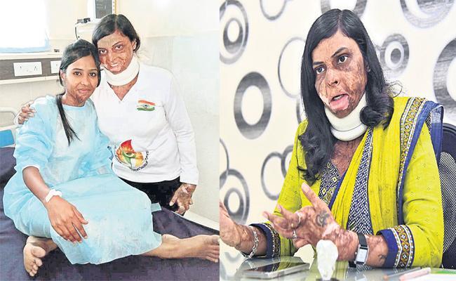 Burn Survivor Stories Hyderabad - Sakshi