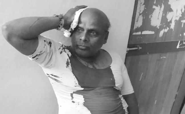 Man Attacked With Axe On Bike Issue At Yadagirigutta - Sakshi