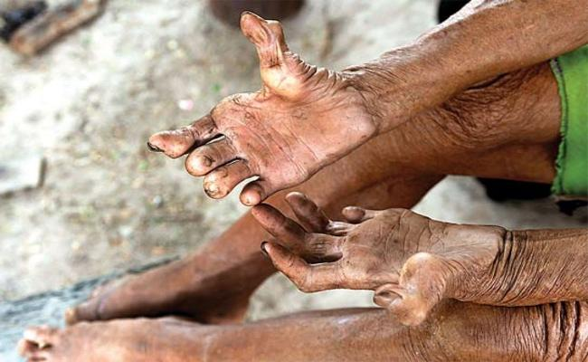 Leprosy Is Expanding In Joint Adilabad District - Sakshi