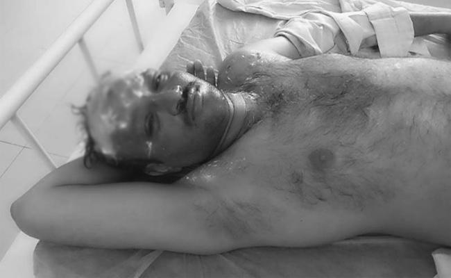 Workers Attack Hotel Owner In Martur At Prakasam - Sakshi