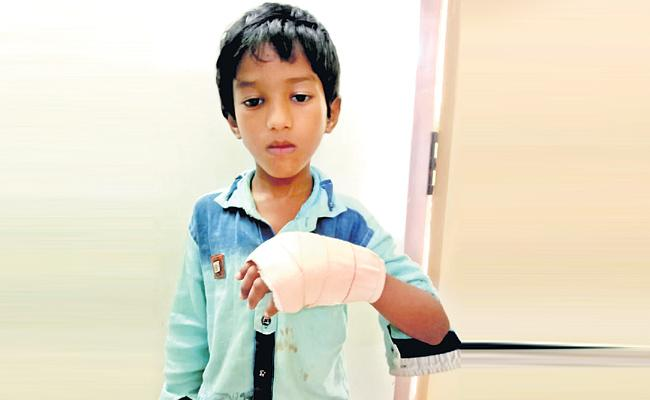 Teacher Beaten Student With Iron Scale And Student Injured - Sakshi