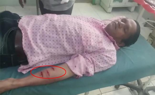TSRTC Strike: bus conductor attempted suicide by slicing his arm - Sakshi