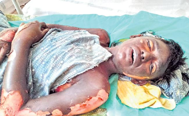 Son Attacked With Petrol By His Father's Brother At vinukonda - Sakshi