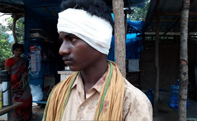 Customer Bites Person Ear Instead Of Paying The Bill In Mahanandi - Sakshi