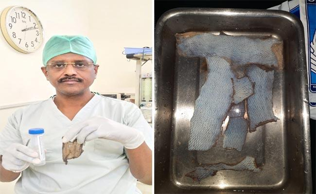Doctors Made Plastic Surgery Successful By Transplanting Skin In Guntur - Sakshi