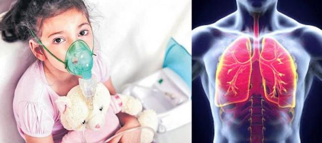 India saw 2nd-highest number of pneumonia deaths of childrens - Sakshi