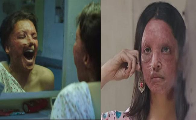 Chhapaak Trailer Out Deepika Padukone Fight For Justice As Malti - Sakshi