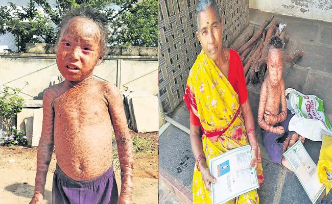 Boy Suffering With Unknown Disease From Four Years At Prakasam District - Sakshi