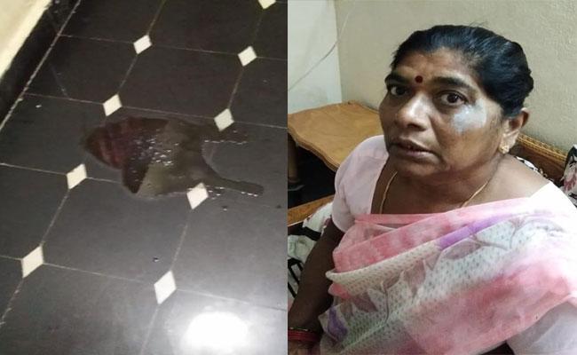 Daughter Acid Attack On Mother In Srikakulam - Sakshi